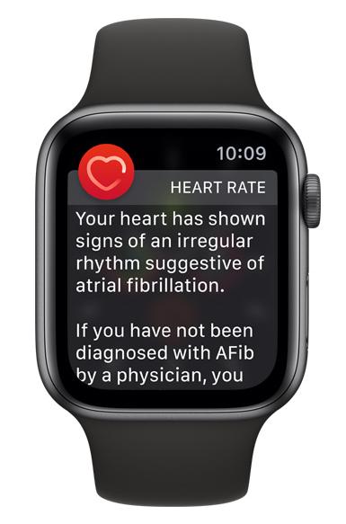 Apple Watch: EKG Warning