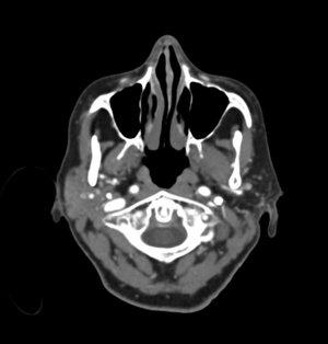 CT: Head Slice 1