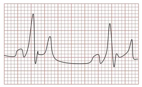EKG Trace: EPR