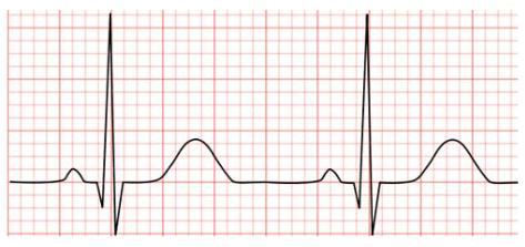 EKG Trace: Healthy