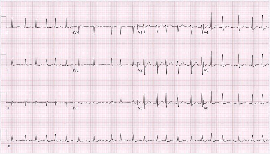 EKG: Atrial Fibrillation
