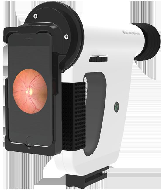 Remidio Fundus-On-Phone Device