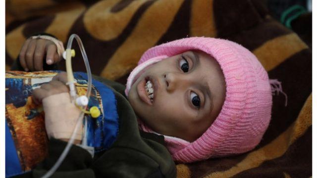 إدارة ترامب تدفع اليمن إلى المجاعة - الفاينانشال تايمز - BBC News عربي
