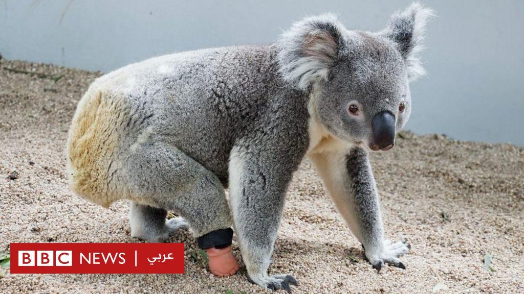 ولد دون قدم لكن طبيب أسنان ساعده على السير، كيف؟ - BBC News عربي